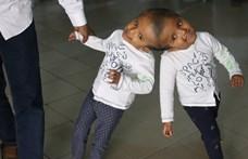 A hónap végén választják szét a bangladesi összenőtt ikreket – magyar segítséggel