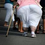 Nem magánügy a túlsúly, nyomasztóan sokba kerül a kezelése