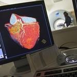 Vigyázzon a hétfővel: nagyobb a szívinfarktus veszélye