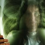 Tömegesen pusztít a tüdőrák: megmenthetők-e az erős dohányosok?