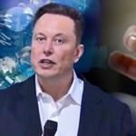 Elon Musk azt állítja, hogy egy majom agyába mikrochipet rakott, amely így a gondolataival irányíthat egy videojátékot