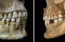 Meglepheti, bár logikus: azért beszélünk ma máshogy, mert az őseink elkezdtek mást enni