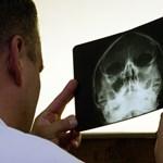 Háromból három egészségügyi közbeszerzés volt szabálytalan