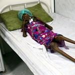 A BBC riportere sem bírta szó nélkül, amit egy jemeni gyerekkórházban látott