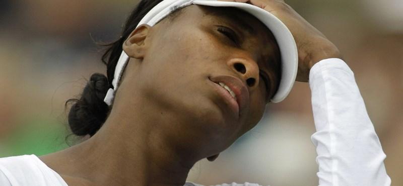 Venus Williams beteg, veszélyben a karrierje