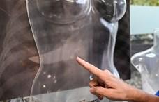 Szomorúan Erdélyből: Egy nő gyalázatos megverése miatt hangos a sajtó