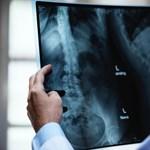 MRI-t gyártó-forgalmazó cégeket büntetett 1,6 milliárdra a GVH