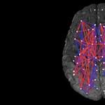 Az ELTE kutatói fogtak 470 embert, és csináltak egy térképet az agyuk kapcsolataiból