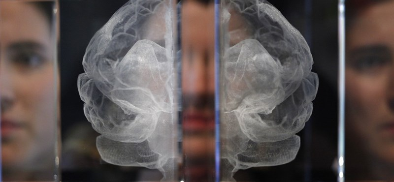 Teszt – Önnél melyik a dominánsabb: a jobb vagy bal agyfélteke?