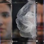 Megfejtették, miért nőtt aránytalanul nagyra az ember agya
