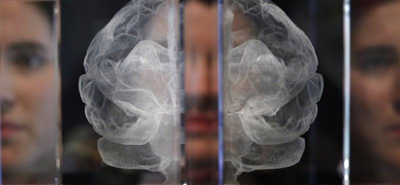 Komolyabb a veszély, mint gondolná: ez történik az agyával, ha nem alszik eleget