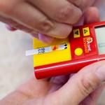 Naponta tíz magyar lábát kell levágni diabétesz miatt