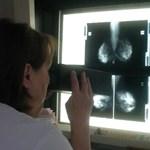 A férfiakat is érinti a mellrák, ráadásul náluk agresszívabb, mint a nőknél