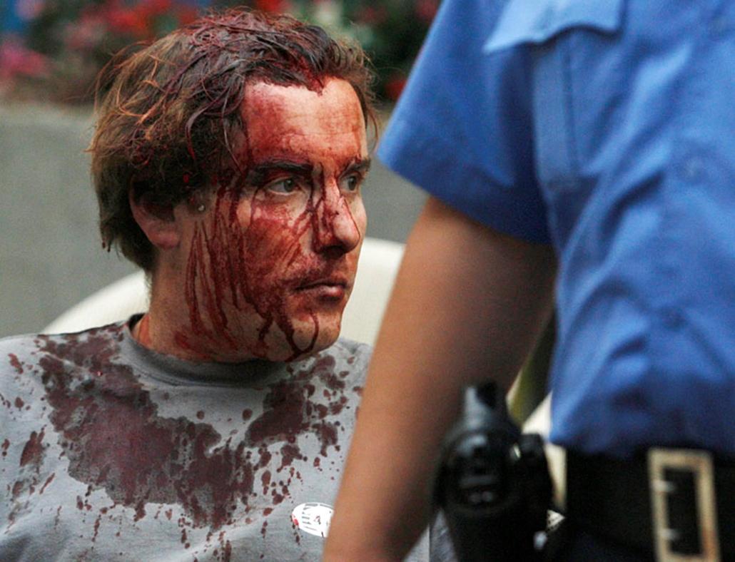 A Toulouse francia futballklub sebesült szurkolóját védi egy rendőr Belgrádban, miután szerb és francia drukkerek verekedtek össze egy belgrádi kocsmában. Egy francia férfi életveszélyes fejsérüléseket szenvedett, egy szerb és egy francia szurkoló könnyebben megsebesült az összetűzésben, amely órákkal az előtt tört ki, hogy megkezdődött a szerb Partizán Belgrád és a Toulouse mérkőzése a labdarúgó Európa Liga J csoportjánmak első fordulójában.