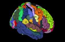 Elkészült az emberi agy első háromdimenziós digitális atlasza