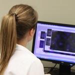 A magyar rákdiagnosztikai program, amely már 6500 ember kezelését segítette