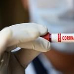 16 ezer ember kéri, hogy fertőzzék meg szándékosan koronavírussal, hogy közelebb jussunk az ellenszerhez