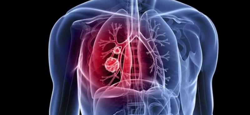 A netes kereséséből is kimutatható a tüdőrák – állítja a Microsoft