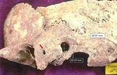 Egy lelet bizonyítja, 1300 éve is végeztek nem egyszerű agyműtéteket