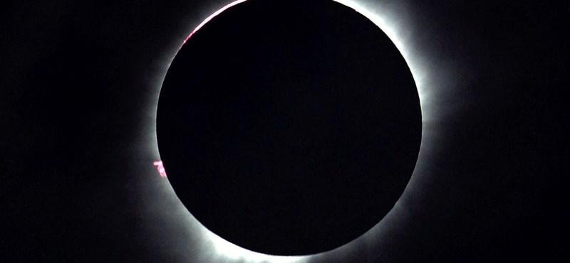 Nem vicc, hogy védőszemüveg kell: így néz ki a retinája annak a nőnek, aki belenézett a napfogyatkozásba
