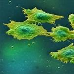 Új módszer a rák korai felismerésére