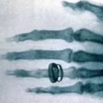 Ez volt a világ legelső röntgenfelvétele