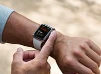 Kitalálta az Apple, hogyan tudna vérnyomást mérni az Apple Watch
