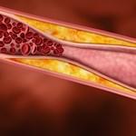 Megéri-e minden felnőttel koleszterincsökkentőt szedetni?
