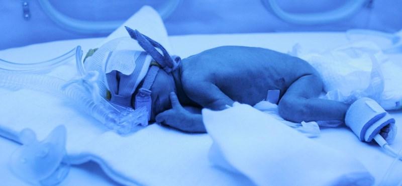 245 grammal született a baba, most egészségesen hazatérhetett a kórházból