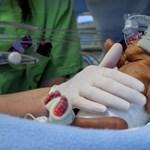 Be kell zárni a Honvédkórház koraszülöttcentrumát a szakorvoshiány miatt