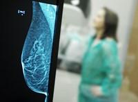 Végső bizonyíték még nincs, de összefügghet a lombikkezelés és a mellrák