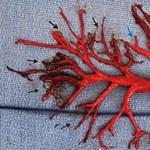 Köhőgőrohamot kapott a 36 éves férfi, és ez a 15 centis vérrög jött ki a tüdejéből