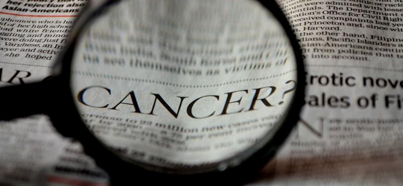 Tíz napon belül kapnak diagnózist Budapesten a daganatgyanús betegek októbertől