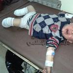 Kiborító kép – pokollá vált a gyerekeknek Szíria