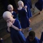 Halálos veszélyt jelentenek a választások az afrikai albínókra