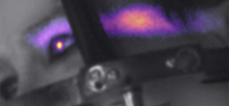 Alaposan megnézték egy rákbeteg szemét a tudósok, és olyat láttak, amit eddig soha