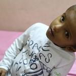 Bangladesben fogják szétválasztani a magyar orvosok a fejüknél összenőtt sziámi ikreket