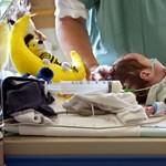 Évi 70 koraszülött babát mentenek meg a vakságtól a Semmelweis orvosai