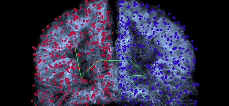 Érdekes dolgokat azonosítottak az agyban a ELTE matematikusai