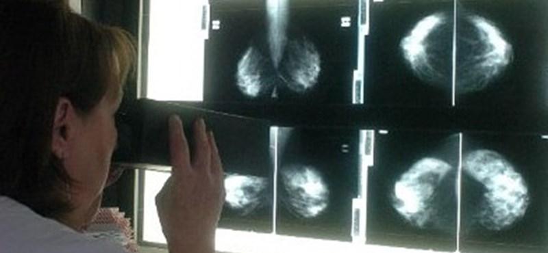Krónikus gyulladások okozhatják a rákot