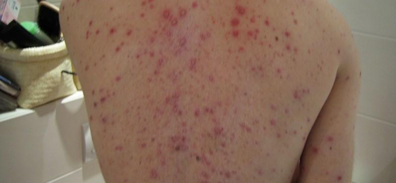 Megugrott a mumpszosok és kanyarósok száma Angliában, járványtól tartanak Európában