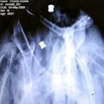 Kínába költözteti röntgen üzletágának központját a GE