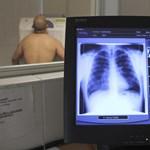 Kezdhetünk aggódni azon, hogy az egészségügy visszatér a rendes kerékvágásba