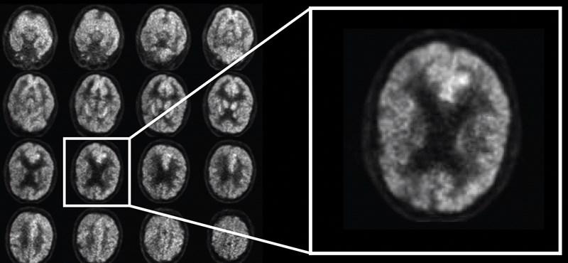 Van egy program, ami 6 évvel az orvosok előtt, eddig 100%-ban megmondta, kit fenyeget az Alzheimer-kór