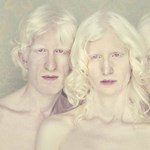 Gustavo Lacerda, az albínók fényképésze