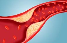 Már egy éven belül 30%-kal nagyobb eséllyel hal meg, aki nem szedi jól a koleszterin-csökkentőjét