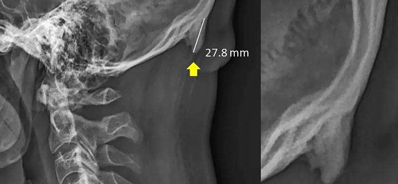 Megdöbbentő felfedezés: pluszcsont nőhet a koponyára, ha túl sokat mobilozunk