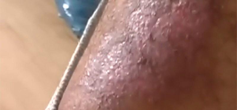 Videó: a 11 éves lányom megégett, hogyan kárpótolhatnának?