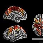 Drámai következménnyel jár az agyban, ha valaki 12 éves koráig forgalmas út mellett él