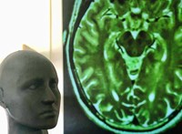 Meglepetést hozott, amikor fMRI géppel vizsgálták a vakok agyát